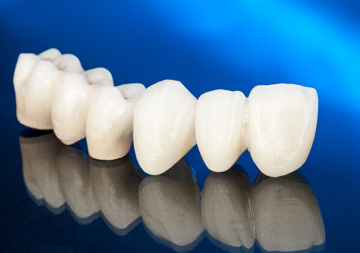 For Patients in Marrero, LA Area, Porcelain Dental Crowns are the Perfect Solution
