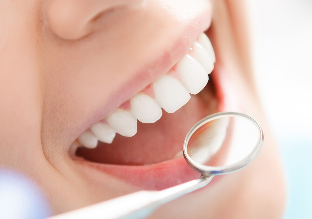 Restore your smile with composite tooth fillings in Marrero, LA