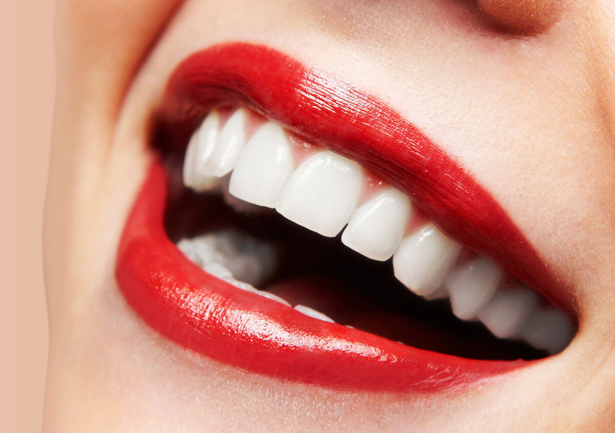 What Makes Zoom Dental Whitening Different In Marrero LA Area